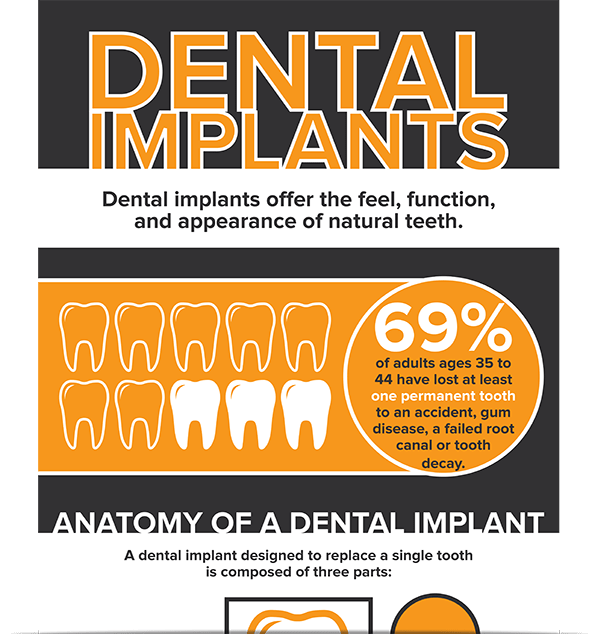 Dentist In Anchorage - The downloadable infographic about dental implants