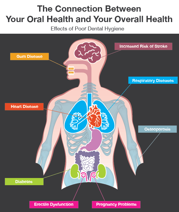 Infographic showing the connection between oral health and overall health